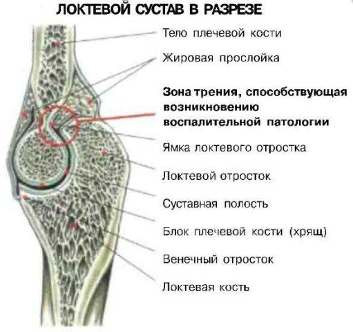 Боли в локтях при жимах лежа.jpg
