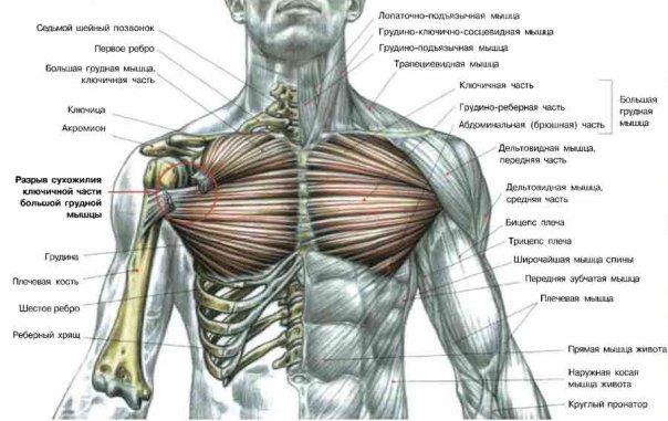 Разрыв большой грудной мышцы.jpg