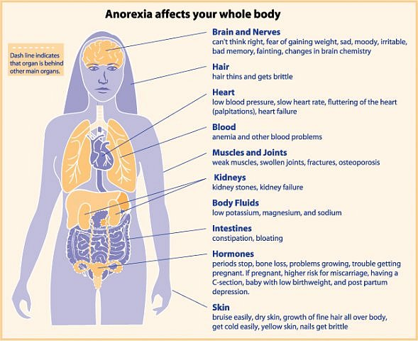 definitions and treatment of anorexia nevrosa and bulimia Anorexia nervosa is characterized by a significant weight loss resulting from excessive dieting to become even thinner, the anorexic will avoid food and taking in.